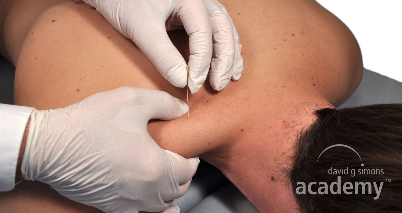 Dry Needling of the trapezius muscle. During Dry Needling, trigger points which are located manualy first, are treated precisely.