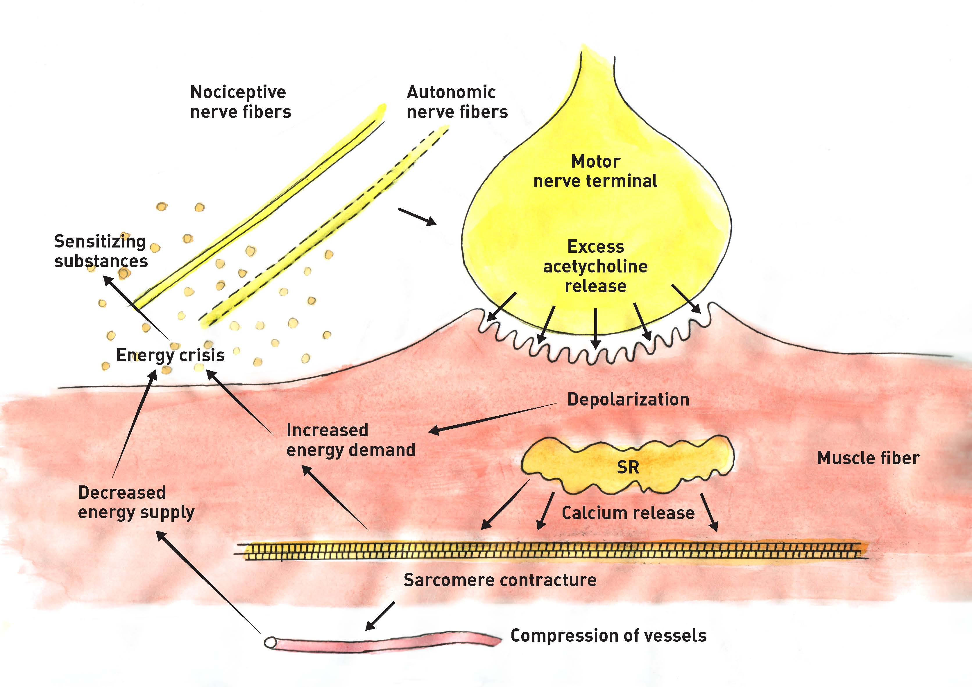 "The ""Energy Crisis Theory"" for Myofascial Trigger Points: An injury to the sarcoplasmatic reticulum leads to an unregulated release of calcium ions within the muscle fibers. As a result, these ions constantly contract and compress the small blood vessels within them. This comprimises the circulation and oxygen supply to the muscle fibers. The lack of oxygen and the increasing metabolic demand of the muscle cell is referred to as the energy crisis. This can lead to local inflammation and pain as well as to further contraction of the muscle fibers and the formation of myofascial trigger points."