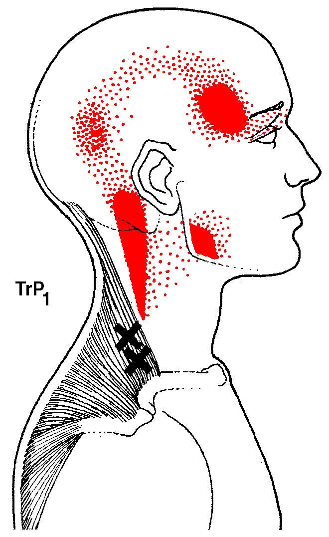"Exemple d'une zone irradiation courante d'un point trigger myofascial du muscle trapèze. (Source: David G. Simons, MD, Janet G. Travell, MD et Lois Statham Simons "", ""Myofascial Pain & Dysfunction - The Trigger Point Manual"", Volume 1, 1999)"