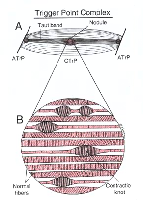 "Immagine di un Trigger Point. Nel cerchio una sezione di alcune fibre muscolari contratte (""contraction knots"" o ""noduli contratti"") all'interno di una bandelletta tesa, dove si possono localizzare i Trigger Point (Fonte: David G. Simons , MD , Janet G. Travell , MD & Lois Statham Simons ""Myofascial Pain & Dysfunction - The Trigger Point Manual"" , Volume 1 , 1999)"
